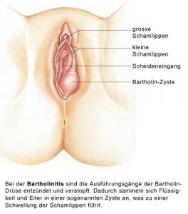 Geschwollene Schamlippe Frühschwangerschaft